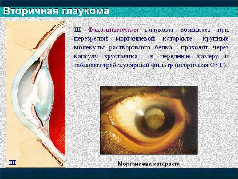 Чем опасна и как лечится вторичная глаукома