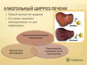 Как вылечить цирроз печени в домашних условиях