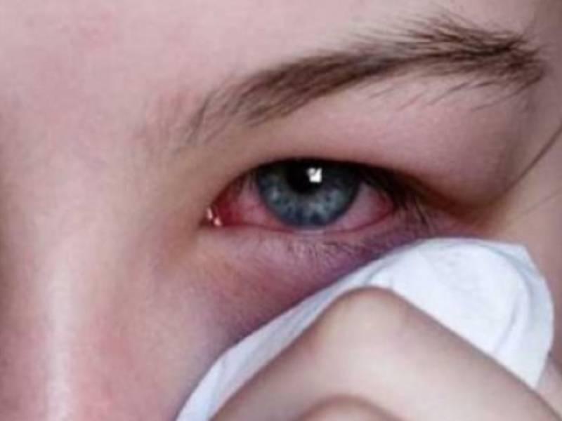 Глазные болезни - обсуждение