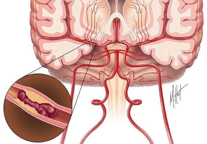 Церебральный атеросклероз - симптомы и лечение заболевания сосудов головного мозга - docdoc.ru