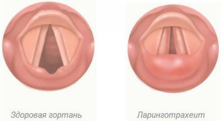Ларинготрахеит симптомы и лечение у взрослых