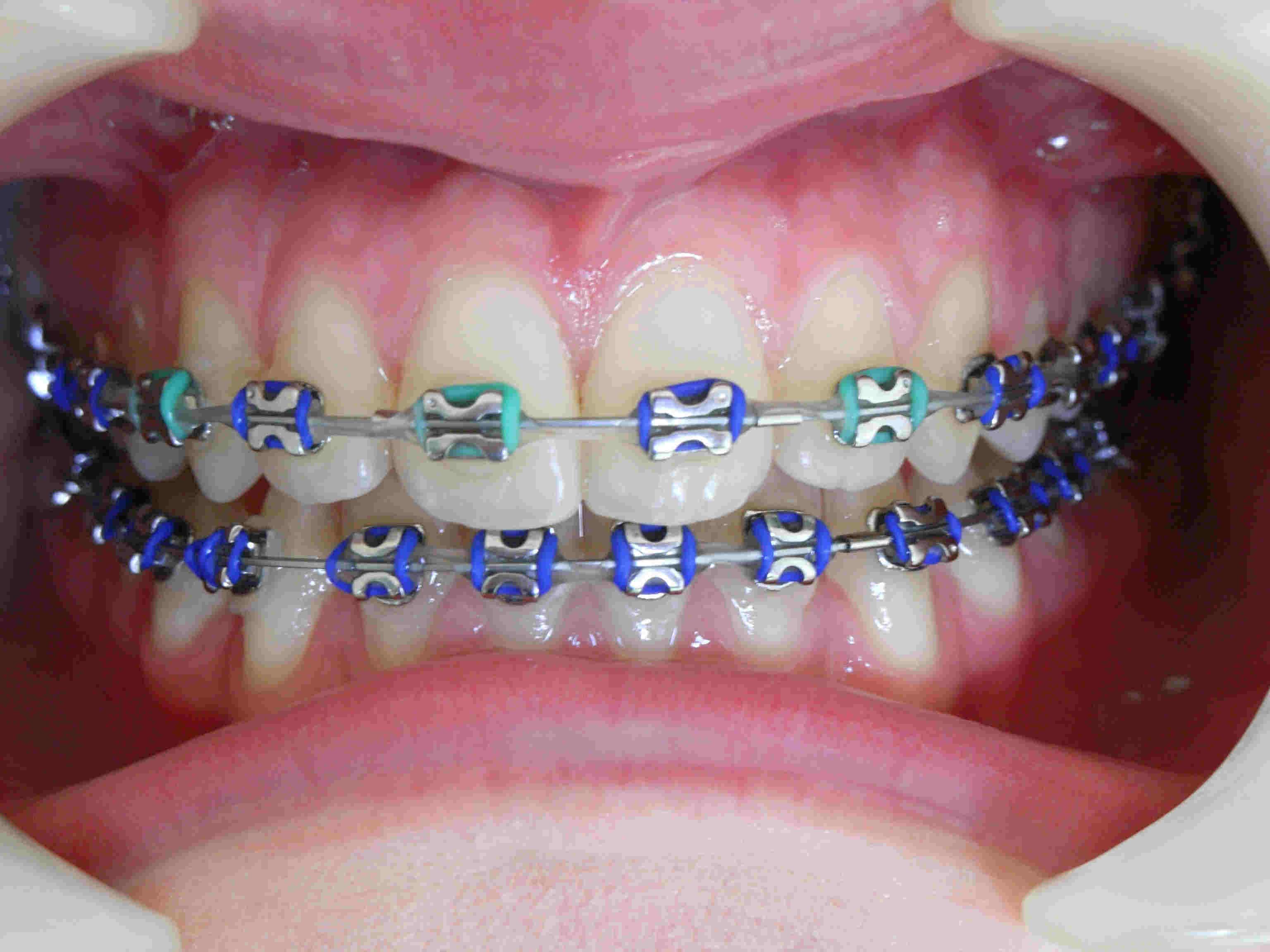 Особенности и различия лигатурных и безлигатурных брекетов