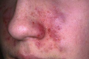 Сода от аллергии на коже, зуда, дерматита