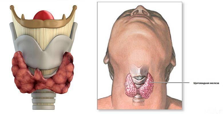 Жизнь после операции по удалению щитовидки