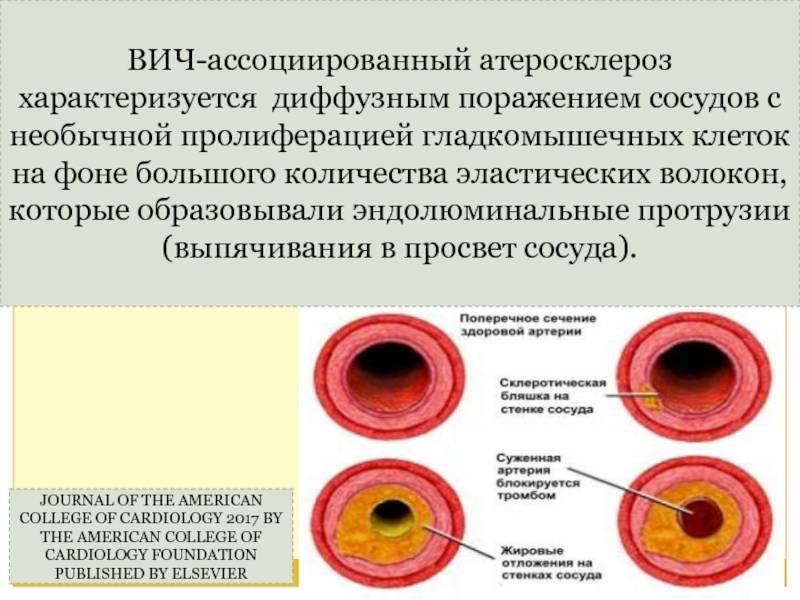 Когда полезная ткань заменяется на пустышку: все про пневмосклероз или склероз легких