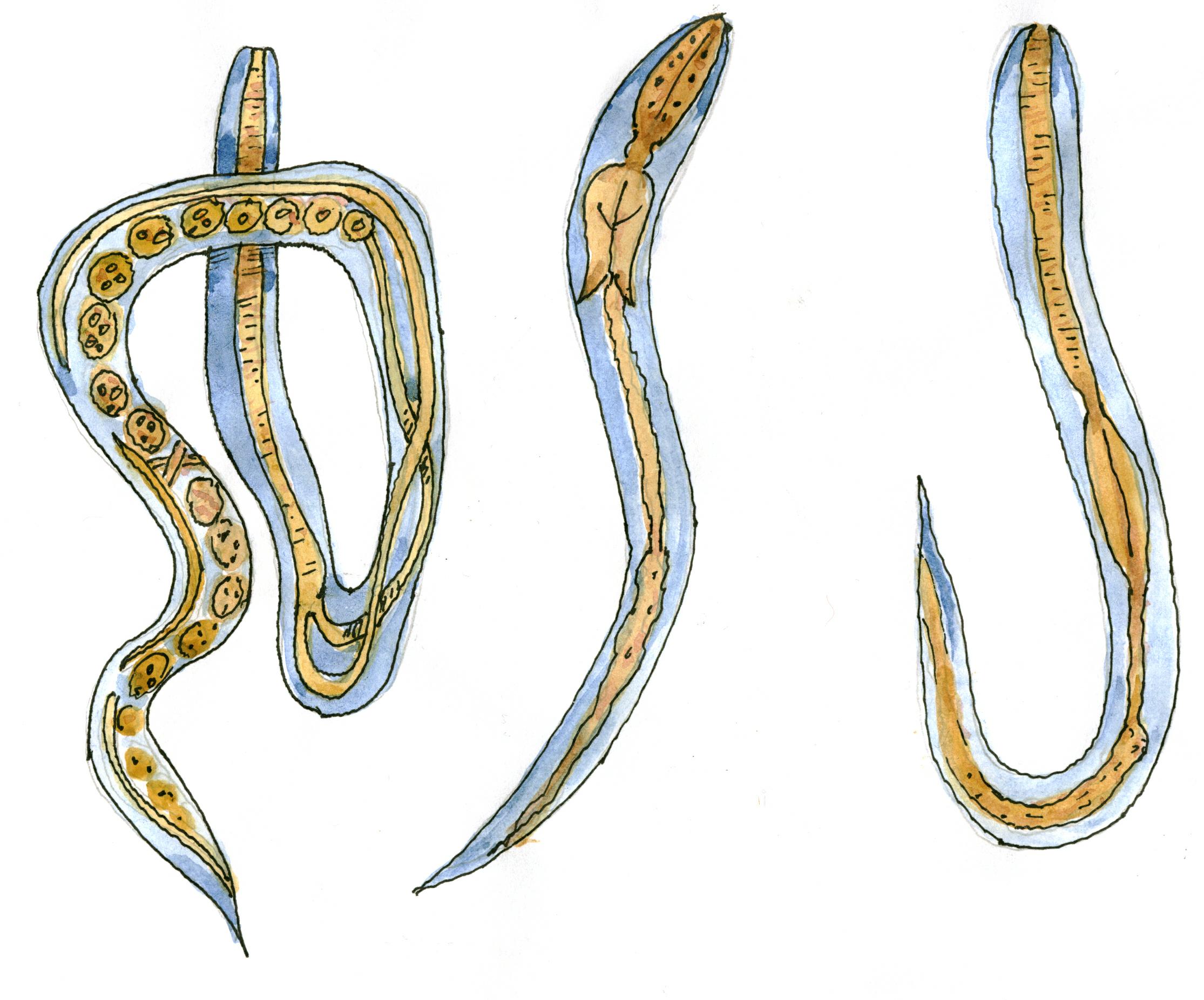 стронгилоидоз что это такое