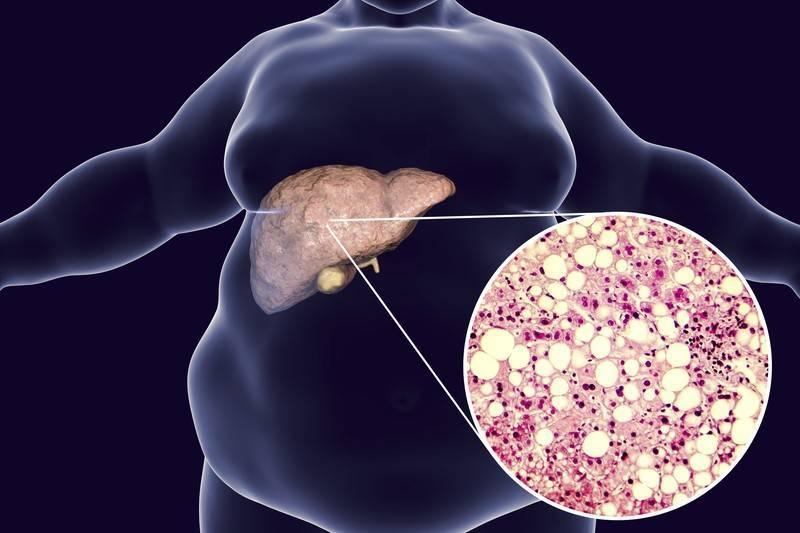 жировой гепатоз печени симптомы