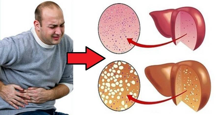 9 признаков того, что токсины отравляют печень