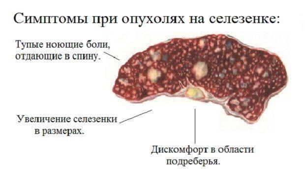 Народные средства при раке печени 4 стадии | советы доктора