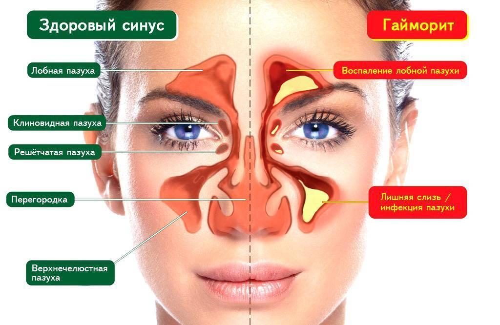 Рецепты прогревания носа сухим теплом при насморке
