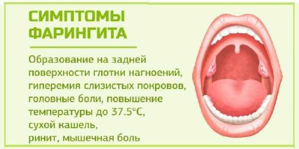 Золотистый стафилококк в горле: причины и лечение
