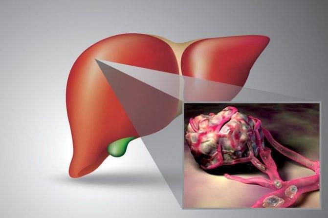 рак печени симптомы перед смертью