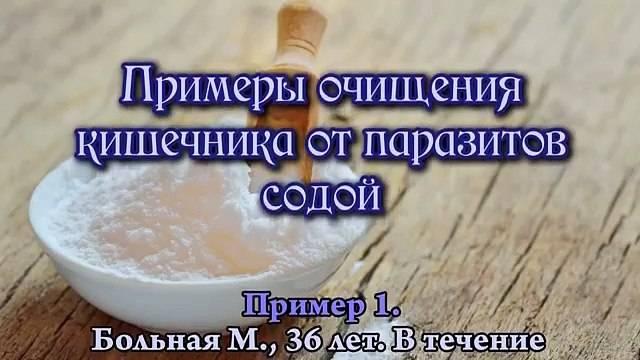 избавление от паразитов с помощью соды