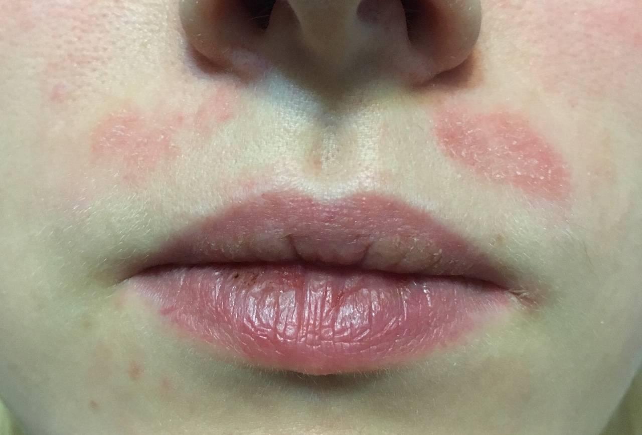 Лечение контактного дерматита на губах