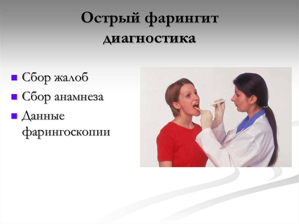 Острый фарингит – лечение, симптомы у взрослых и детей