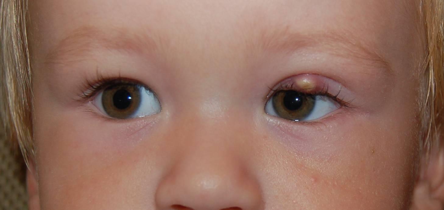 халязион верхнего века у ребенка причины