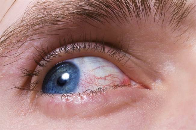 Как вылечить чирей (фурункул) на глазу?