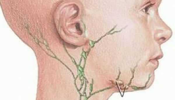 Болит лимфоузел на шее после ангины