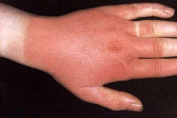 Могут ли паразиты в организме стать причиной аллергии: взаимосвязь двух заболеваний
