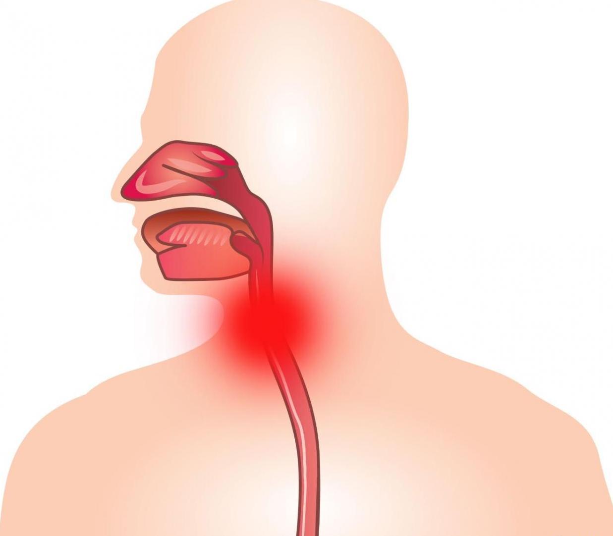Ларингит у взрослых: симптомы и лечение — спросиврача