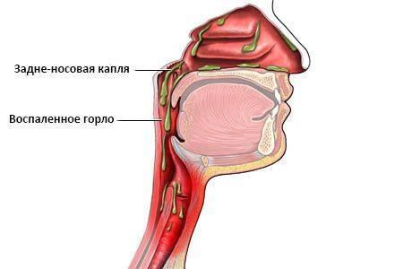 скопление слизи в носоглотке лечение