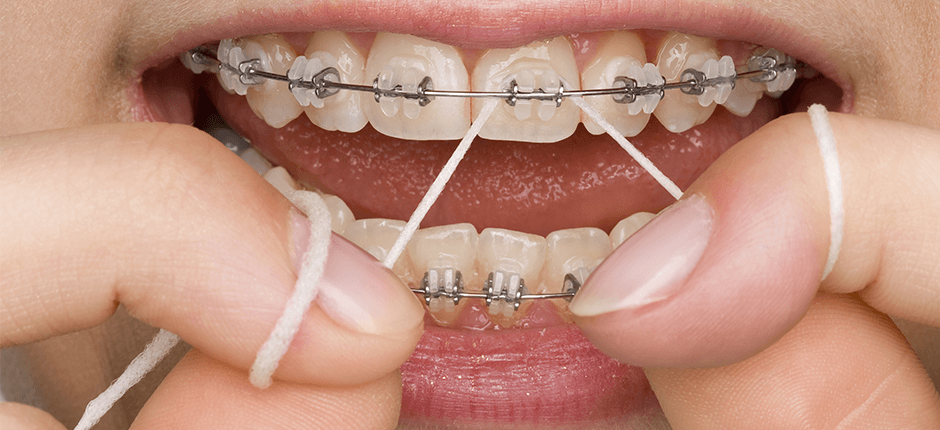 зубная паста при ношении брекетов