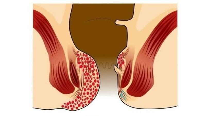 Бывает ли геморрой без крови (кровотечения), боли, узлов и других симптомов?