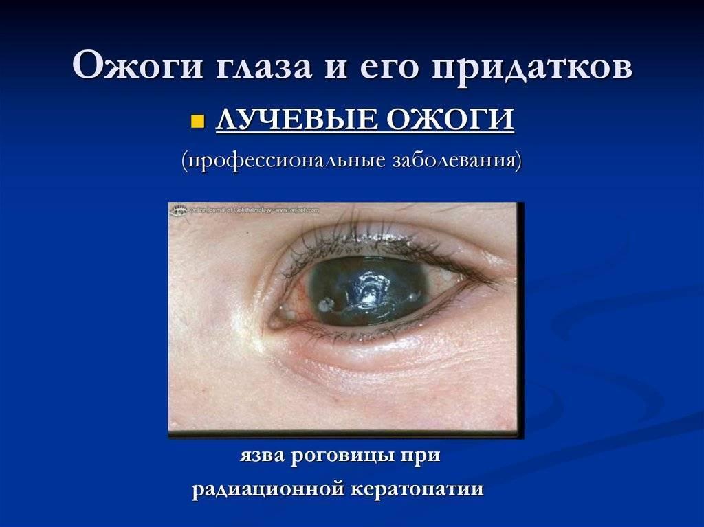 Самые эффективные капли для глаз после сварки