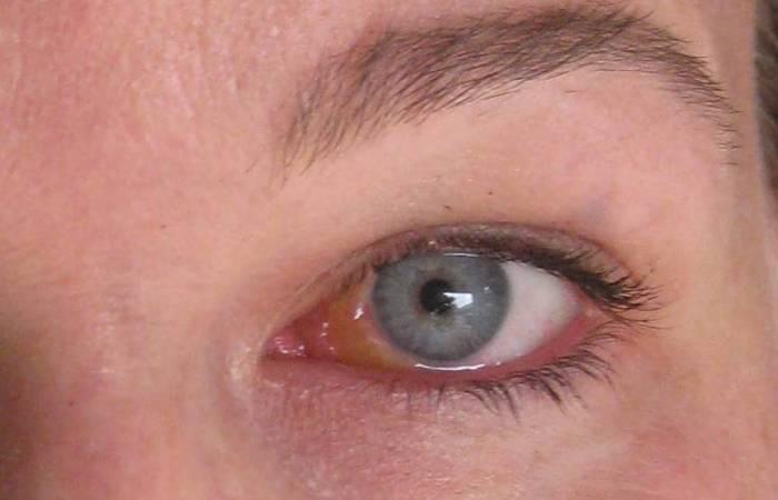 герпес на глазу лечение