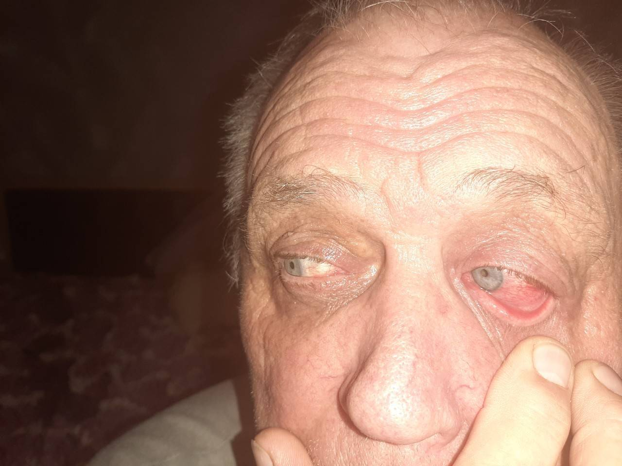 Почему краснеют глаза и болят и слезятся глаза