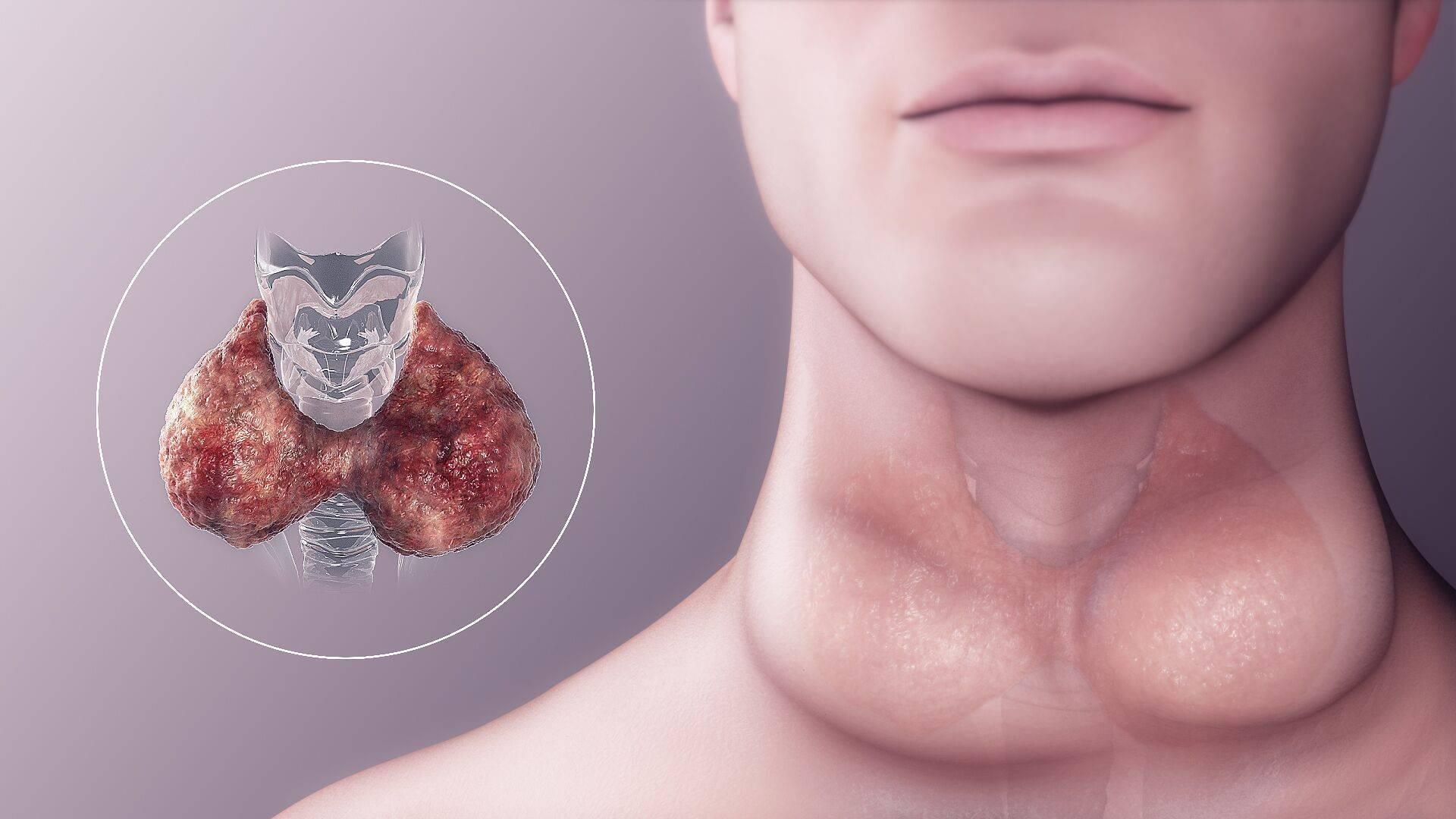 Рак щитовидной железы. симптомы, признаки, причины, диагностика и лечение заболевания.  :: polismed.com