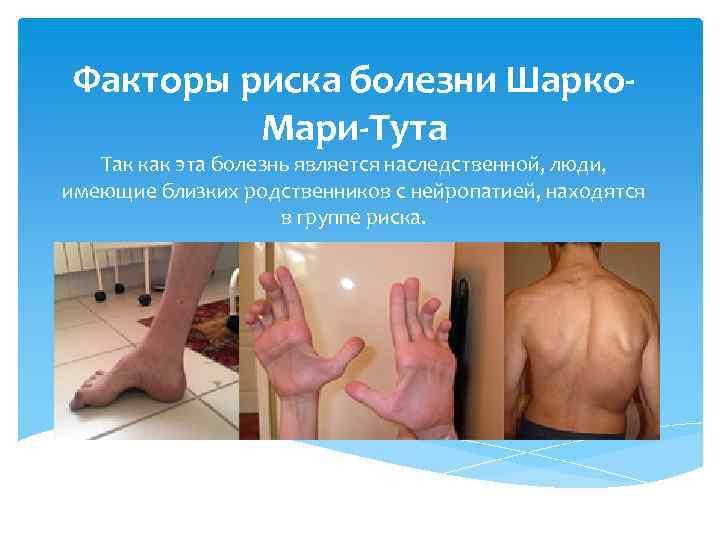 Болезнь шарко-мари-тута                (болезнь шарко мари тута, наследственная моторно-сенсорная невропатия i типа, наследственная нейропатия шарко-мари-тута, шмт, невральная амиотрофия)