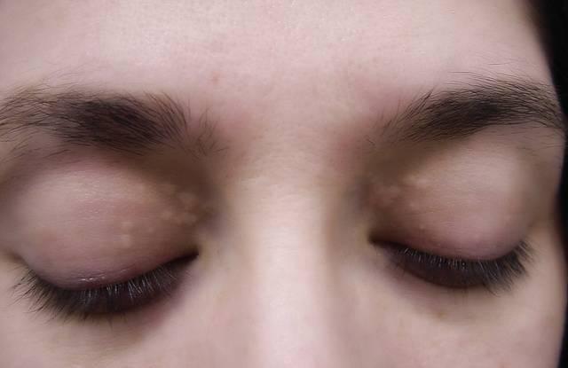 жировик на глазу лечение