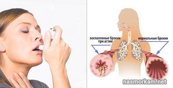 Как снять приступ кашля ночью у взрослого медикаментами или народными способами