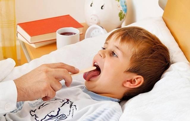 частые ангины у ребенка комаровский
