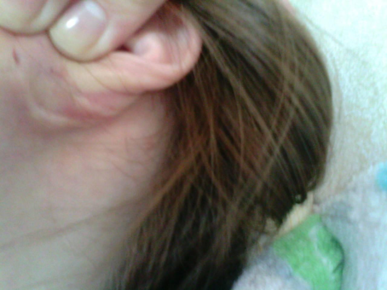 Как снять воспаление лимфоузлов за ушами