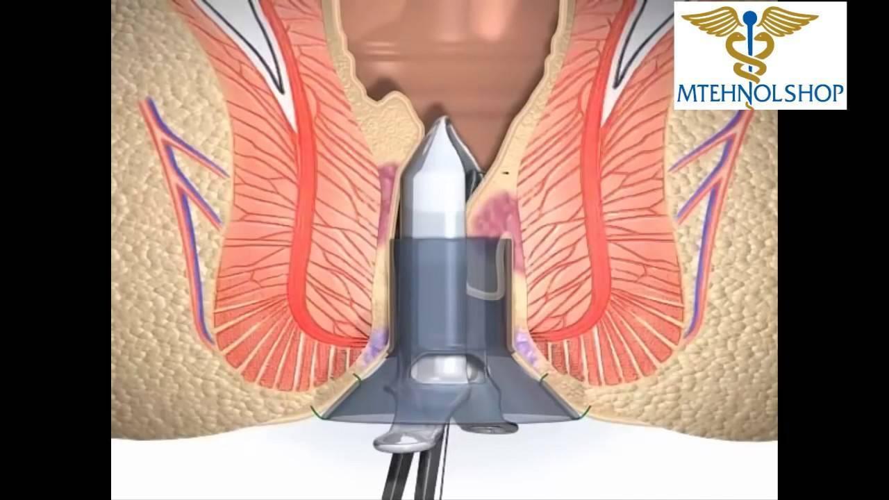 Эффективное оперативное лечение (операции) геморроя