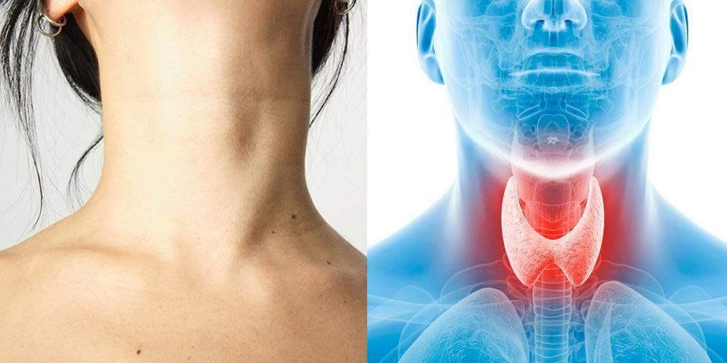 Кашель при заболевании щитовидной железы признаки
