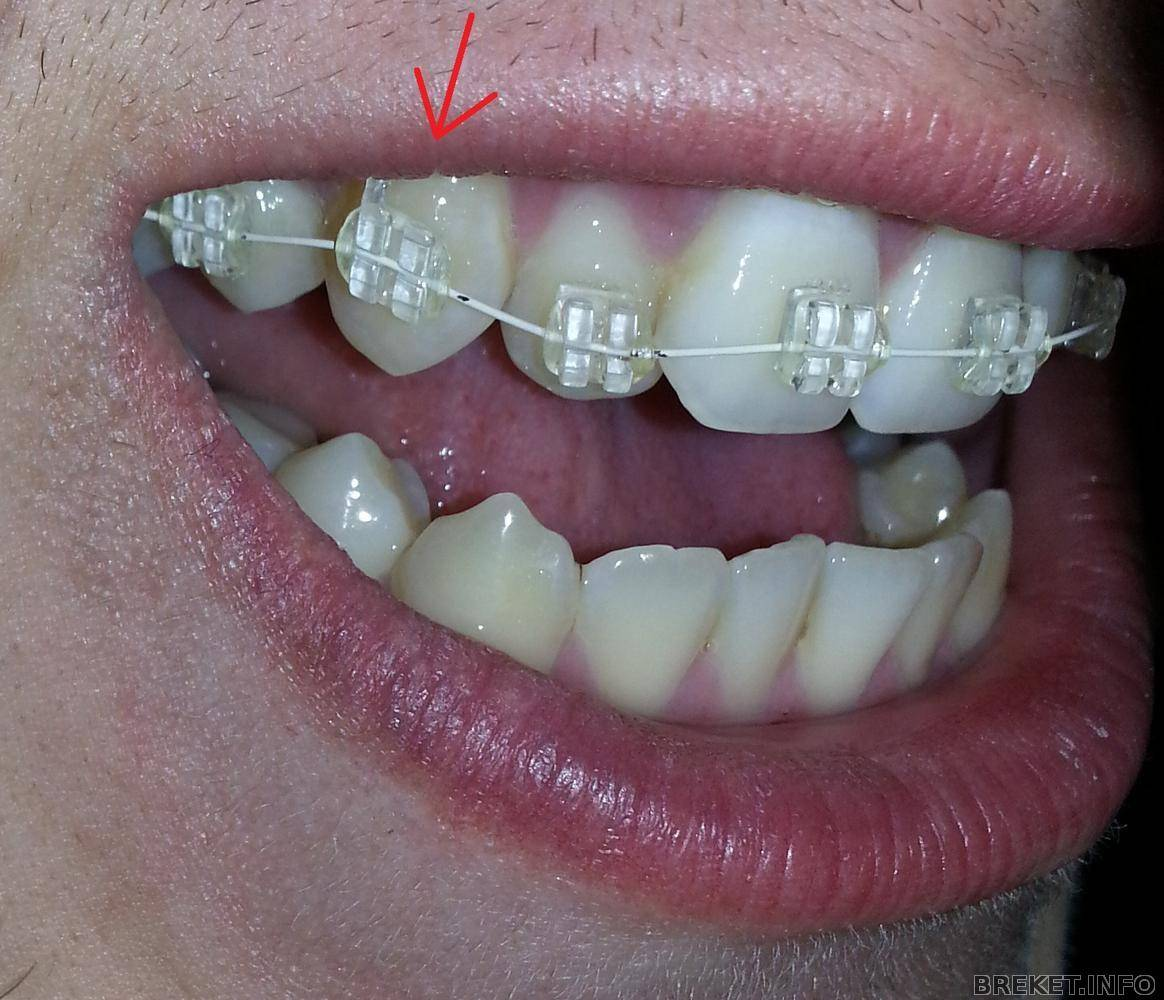 Открылся замок на брекетах. почему может отклеиться брекет на зубе, и что делать, если возникла подобная ситуация? причины отклеивания брекетов от зубов