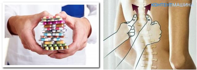 обезболивающие таблетки при межреберной невралгии