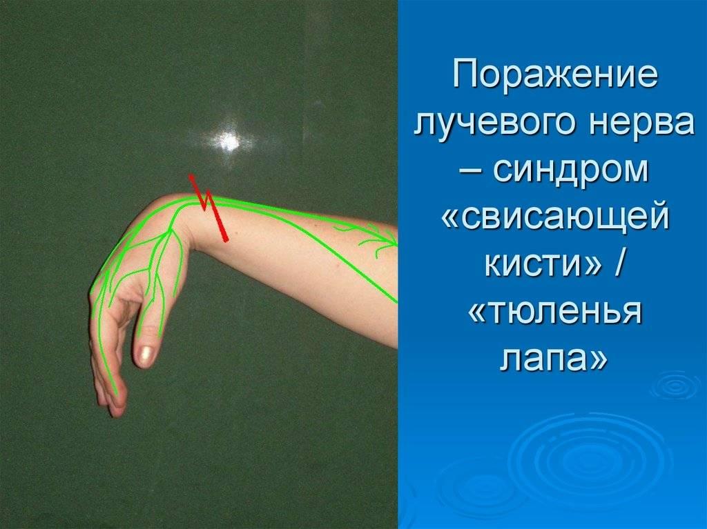 Восстановление лучевого нерва. невропатия лучевого нерва руки — основные симптомы и методы восстановления