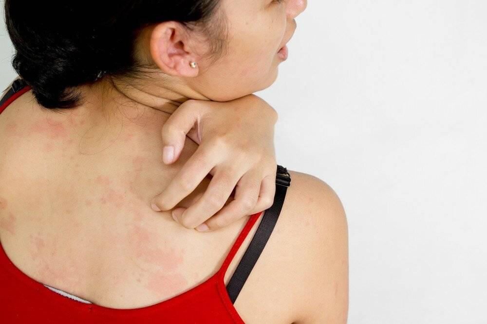 Атопический дерматит. поделитесь успешным опытом лечения
