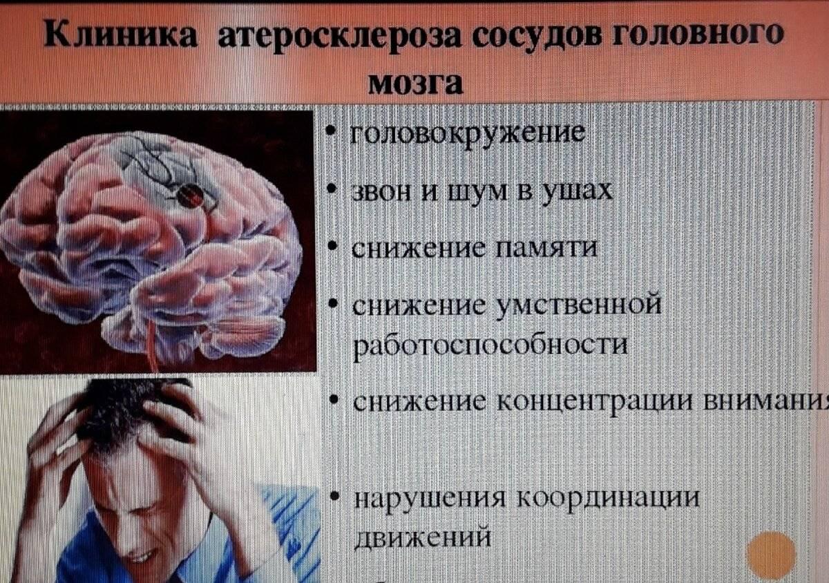 Каковы симптомы церебрального атеросклероза сосудов головного мозга?