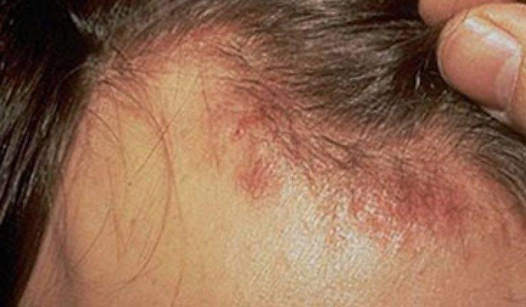 Лечение себорейного дерматита на волосистой части головы