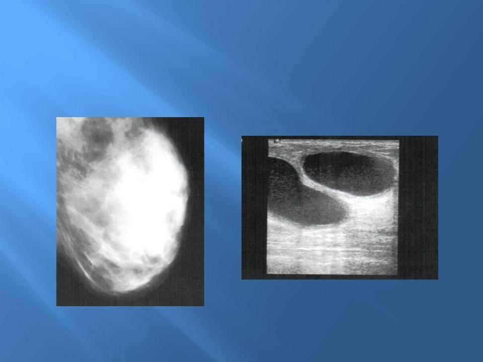 Ультразвуковая диагностика кисты молочной железы