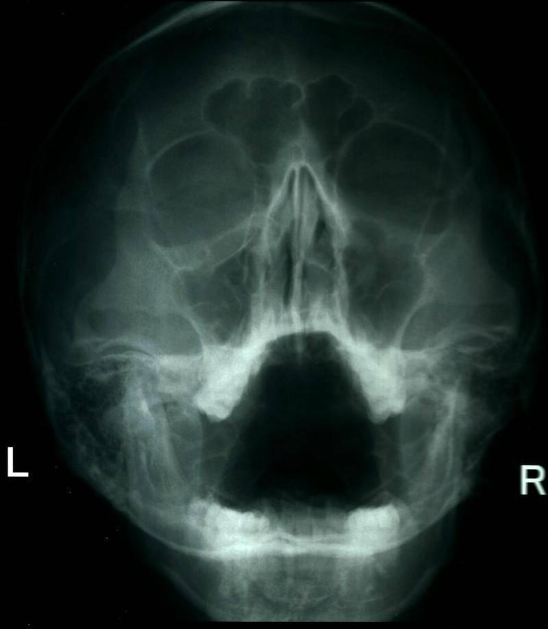 рентгенография пазух носа