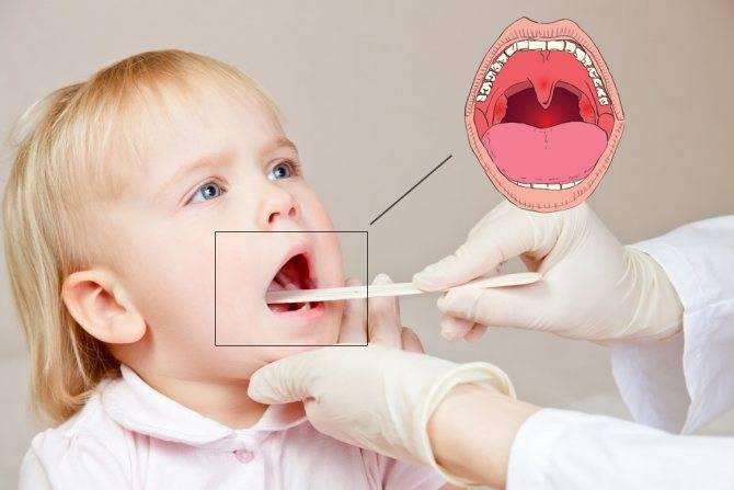 Воспаление горла и сухой кашель у ребенка