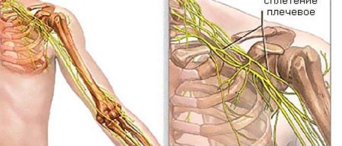 невралгия плечевого сустава лечение