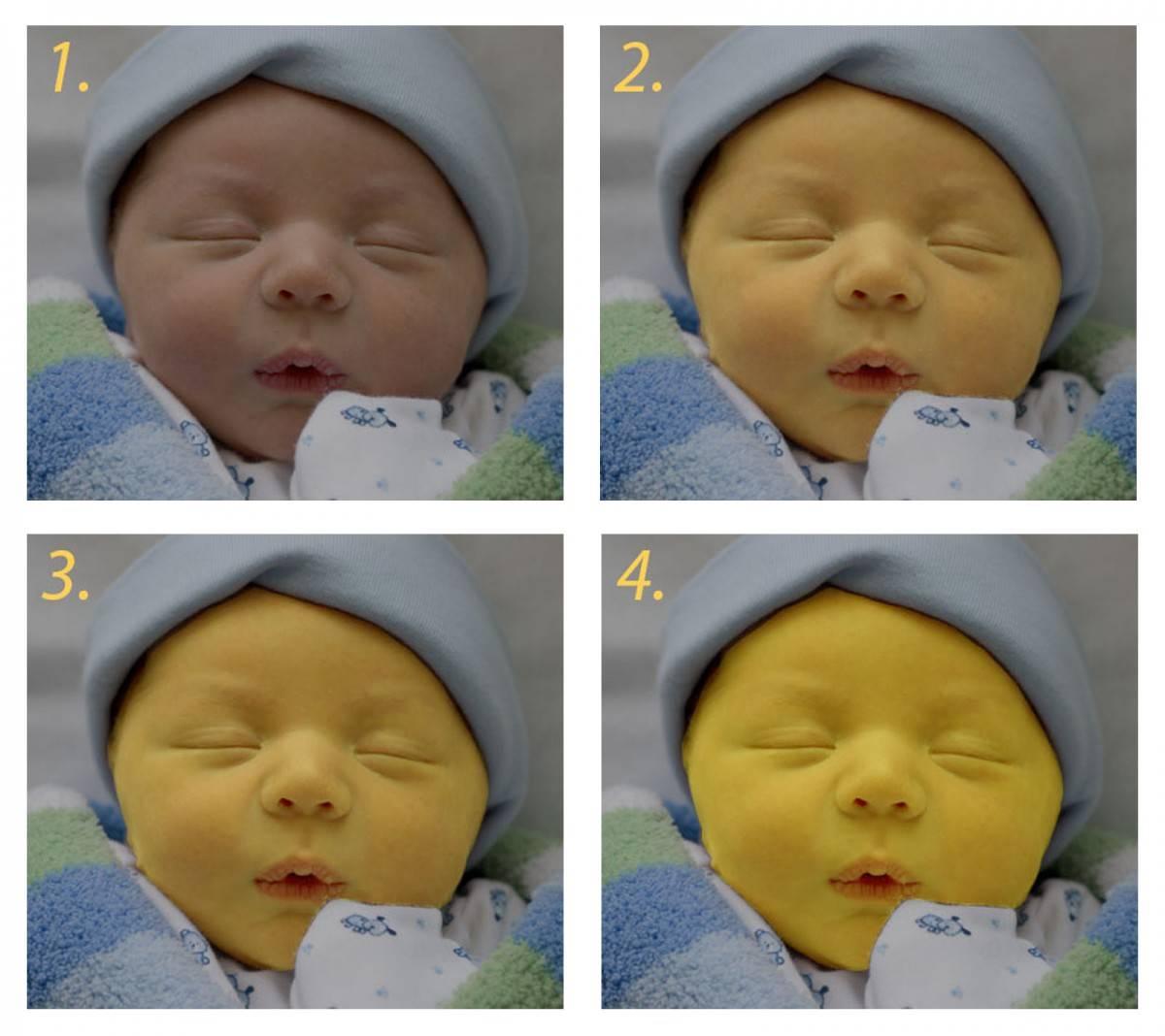 Желтушка у новорожденных: причины, последствия и лечение (комаровский)