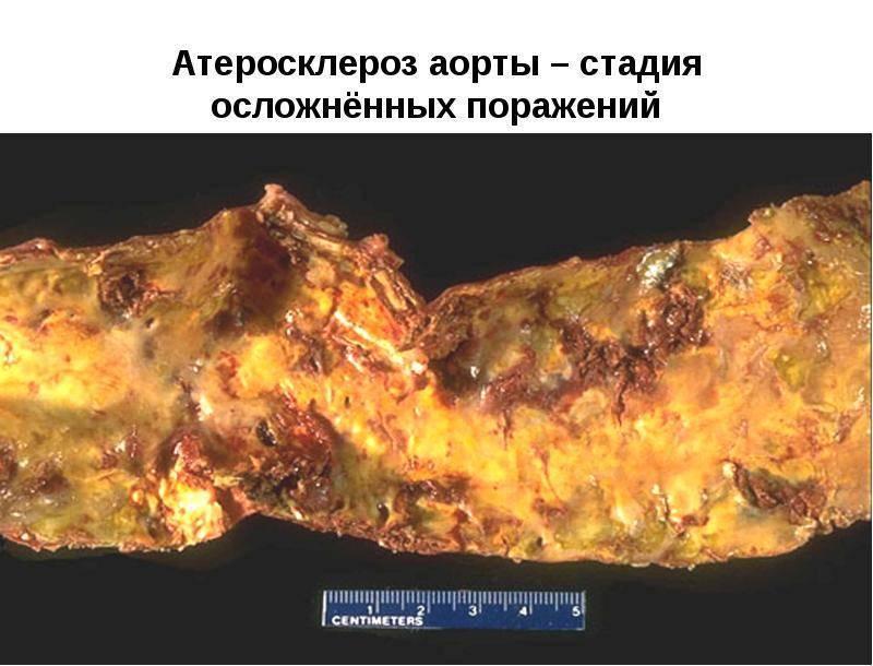 атеросклероз аорты 4